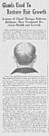 1923 Baldness Cure Quack Mag. Ad L@@k