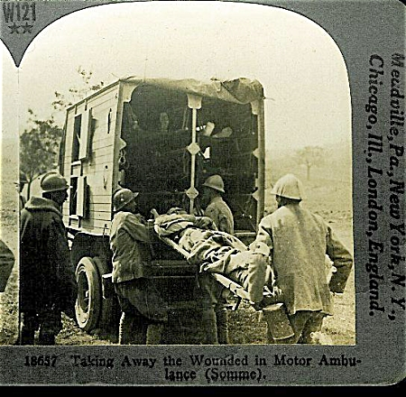 STEREOVIEW - WWI - FRENCH WOUNDED. (Image1)