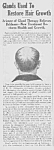 Click here to enlarge image and see more about item QU0621AA1: 1923 BALDNESS CURE Quack Mag. Ad L@@K!
